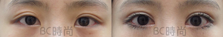 双眼皮_开眼头 永久缝双眼皮 提眼肌矫正 眼尾眼窝脂肪取出